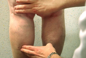 spider veins and varicose veins